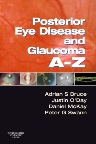 Posterior Eye Disease and Glaucoma A-Z, 1e