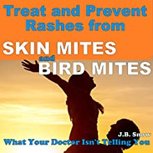 Treat and Prevent Rashes from Skin Mites and Bird Mites: What Your Doctor Isn't Telling You (       UNABRIDGED) by J.B. Snow Narrated by Christopher Hudspeth