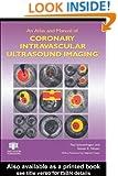 An Atlas and Manual of Coronary Intravascular Ultrasound Imaging