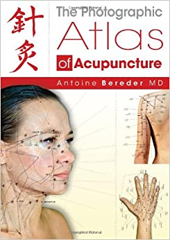 The Photographic Atlas of Acupuncture: 9781844095384