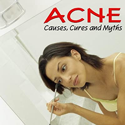 Acne - Causes, Cures, and Myths