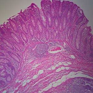 Human Colon Microscope Slide, sec.