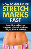 How to Get Rid of Stretch Marks Fast: Learn How to Remove Pregnancy Stretch Marks on Thighs, Breasts and Legs