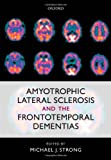 img - for Amyotrophic Lateral Sclerosis and the Frontotemporal Dementias book / textbook / text book