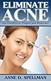 Eliminate Acne: Say Goodbye to Pimples and Blemishes (Acne Treatment Made Easy)