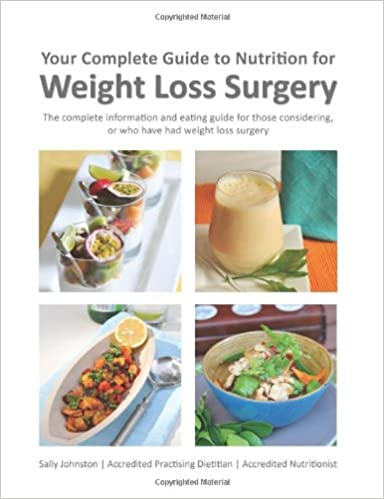 Nutrition for weight loss surgery book