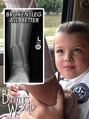 Broken Leg All Better