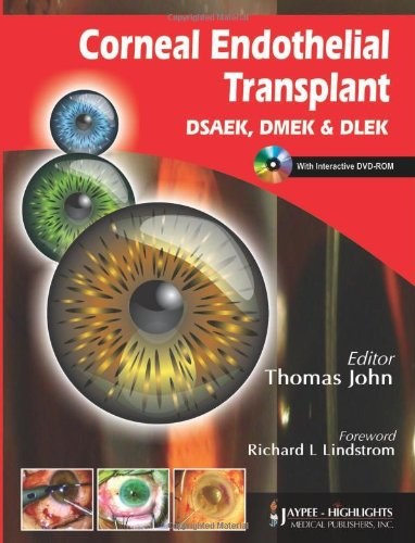 Corneal Endothelial Transplant Dsaek, Dmek & Dlek With Int. Dvd-Rom