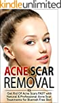 Acne Scar Removal: Get Rid of Acne Sc...