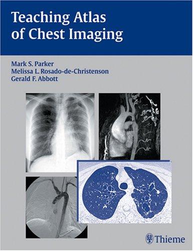 Teaching Atlas of Chest Imaging