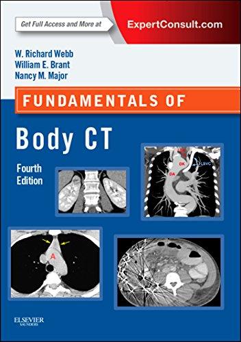 Fundamentals of Body CT, 4e (Fundamentals of Radiology)