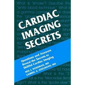Cardiac Imaging Secrets, 1e