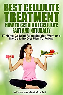 Best Cellulite Treatment - How To Get Rid Of Cellulite Fast and Naturally: 17 Home cellulite Remedies That Work and The Cellulite Diet Plan to Follow (Best Natural Cellulite Treatments and Tips)