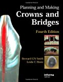 img - for Planning and Making Crowns and Bridges by Bernard G. N. Smith (5-Oct-2006) Hardcover book / textbook / text book