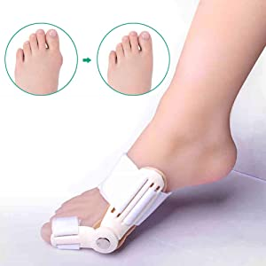 Bunion Corrector 11 in 1 Toe Separators Bunion Pads kit and Bunion Splints Treat Pain in Hallux Valgus, Big Toe Joint, Hammer Toe - Night Time Support for Men & Women
