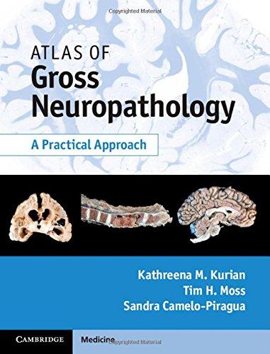 Atlas of Gross Neuropathology Book and Online Bundle: A Practical Approach