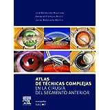 Atlas de técnicas complejas en la cirugía del segmento anterior