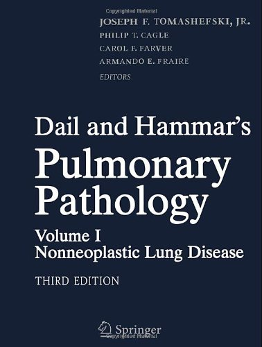 Dail And Hammar'S Pulmonary Pathology, Volume 1: Nonneoplastic Lung Disease