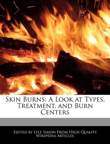 Skin Burns: A Look at Types, Treatment, and Burn Centers