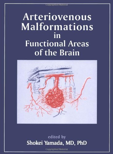 Arteriovenous Malformations in Functional Areas of the BrainFrom Wiley-Blackwell