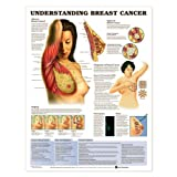 Understanding Breast Cancer Anatomical Chart Plastic Styrene