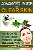 51OKU8ZP%2BeL. SL160  Advanced Guide to Clear Skin: How To Get Rid of Acne Naturally with Home Remedies That Actually Work