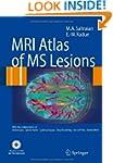 MRI Atlas of MS Lesions