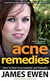 Acne Remedies: Past and Present