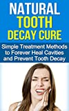 Natural Tooth Decay Cure - Simple Treatment Methods to Forever Heal Cavities and Prevent Tooth Decay