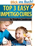 Top 3 Easy Impetigo Cures (Impetigo C...