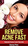 Remove Acne Fast: Natural Acne Cure Secrets: The Most Effective Natural Solution To Cure Acne In 7 Days (Acne Cure, Acne No More, Acne Diet, Acne Scar, ... Guide To Acne Free Skin, Acne Treatment)