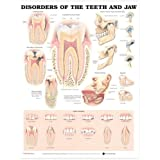 Disorders of the Teeth and Jaw Anatomical Chart (Tamaño: Heavy Paper)