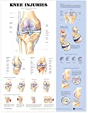 Knee Injuries Anatomical Chart Company