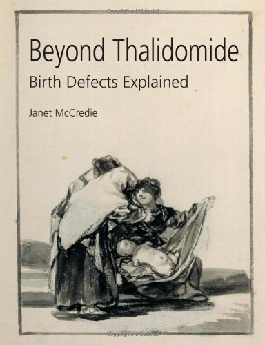 Beyond Thalidomide: Birth Defects Explained