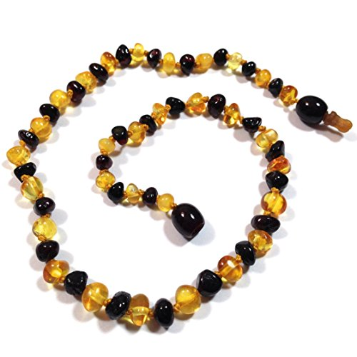 "Hazelaid (TM) 12"" Pop-Clasp Baltic Amber Lemon & Cherry Necklace"