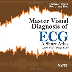 Master Visual Diagnosis of Ecg A Short Atlas- A Short Atlas (Learn ECG Through ECG)