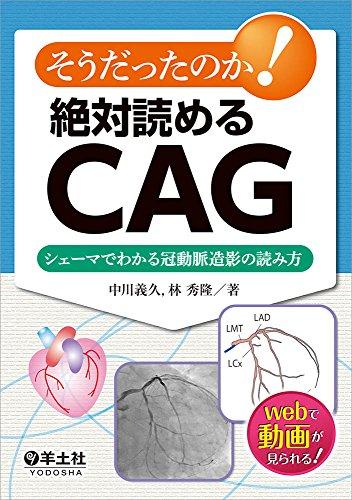 そうだったのか!  絶対読めるCAG〜シェーマでわかる冠動脈造影の読み方