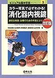 カラー写真で必ずわかる!消化器内視鏡 第2版―適切な検査・治療のための手技とコツ (ビジュアル基本手技 3)