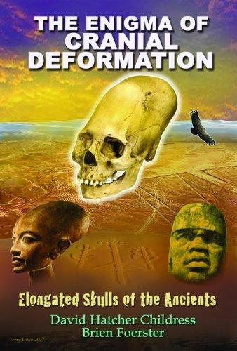 enigma-cranial-deformation