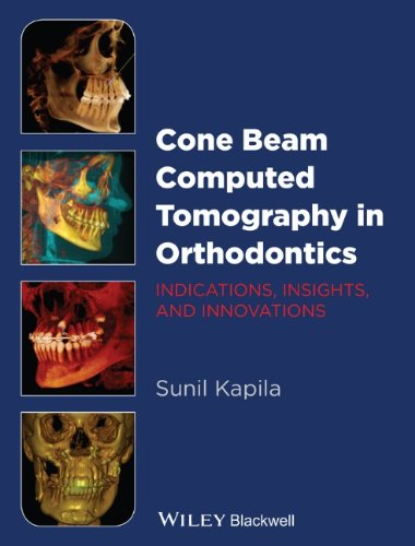 Cone Beam Computed Tomography in Orthodontics: Indications, Insights, and Innovations