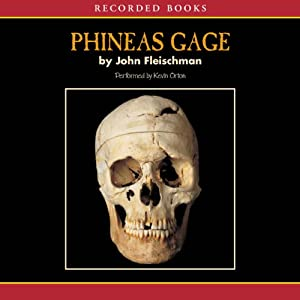 Phineas Gage Audiobook