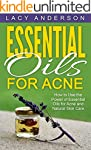 Essential Oils for Acne: How to Use t...