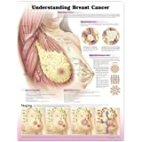 Understanding Breast Cancer Anatomical Poster