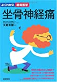 坐骨神経痛—診断と治療の最前線 自ら痛みを改善する方法 (よくわかる最新医学)