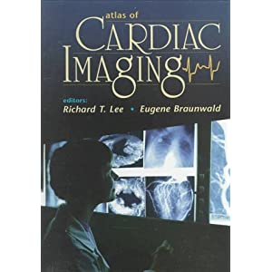Atlas of Cardiac Imaging, 1e