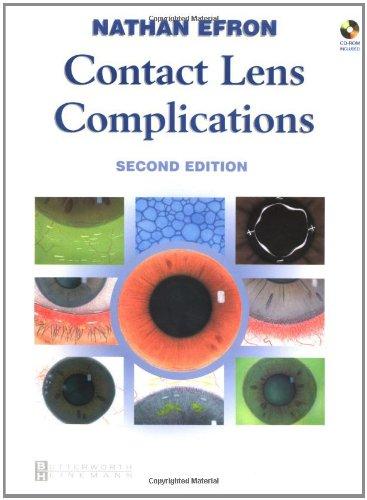 Contact Lens Complications, 2E