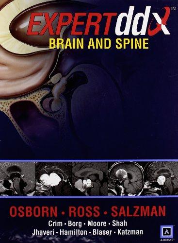 Expertddx: Brain And Spine