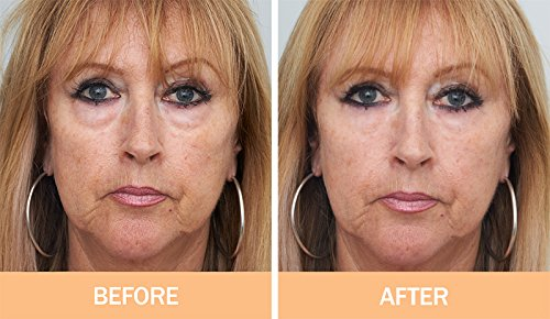original-facelift-in-a-bottle-look-10-years-younger-instantly-puffy-eyes-forehead-deep-lines
