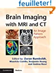 Brain Imaging with MRI and CT: An Ima...