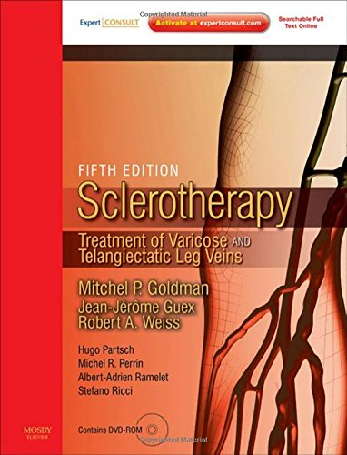 Sclerotherapy Expert Consult - Online and Print: Treatment of Varicose and Telangiectatic Leg Veins, Text with DVD, 5e PDF